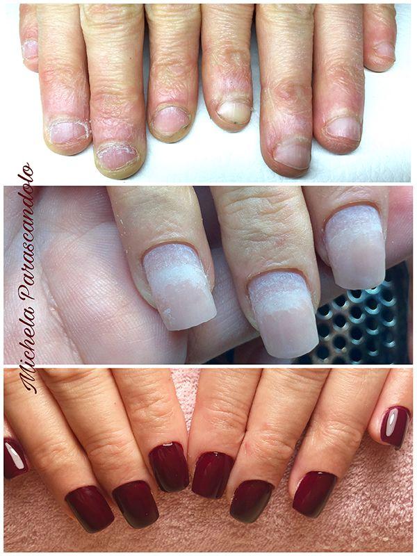 Ricostruzione unghie mangiate